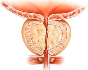 Ostre zatrzymanie wydalania moczu - przyczyny, objawy i leczenie