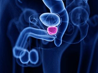 Diagnostyka i małoinwazyjne <br/>leczenie chorób prostaty - img